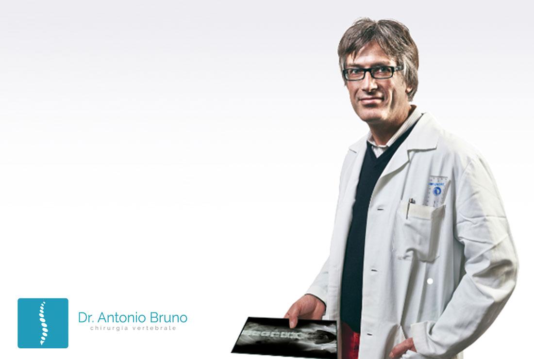 chirurgo vertebrale antonio bruno